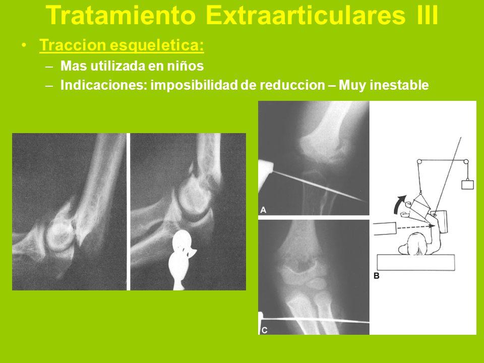 Tratamiento Extraarticulares III