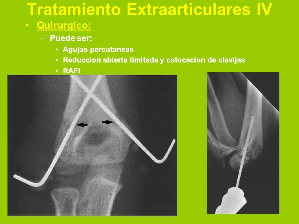 Tratamiento Extraarticulares IV
