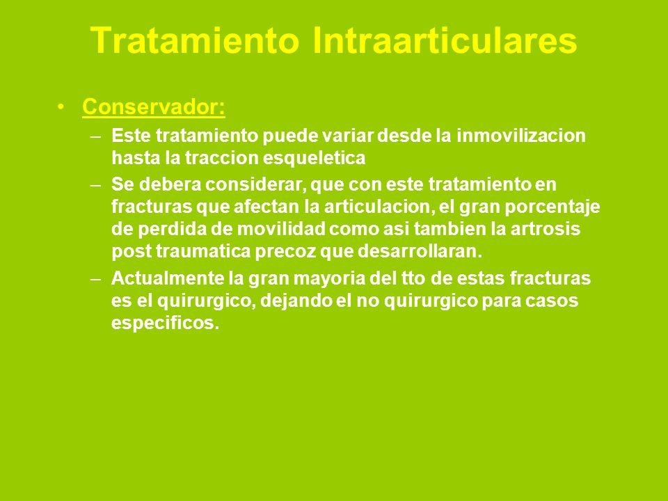 Tratamiento Intraarticulares