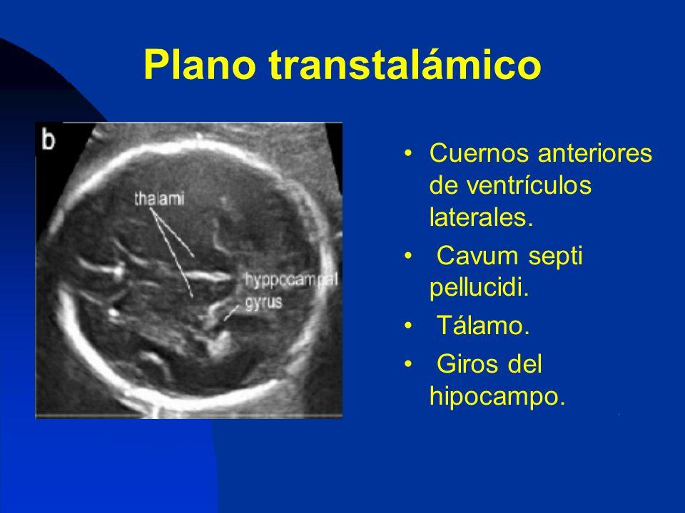 Plano transtalámico Cuernos anteriores de ventrículos laterales.