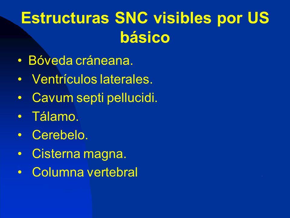 Estructuras SNC visibles por US básico