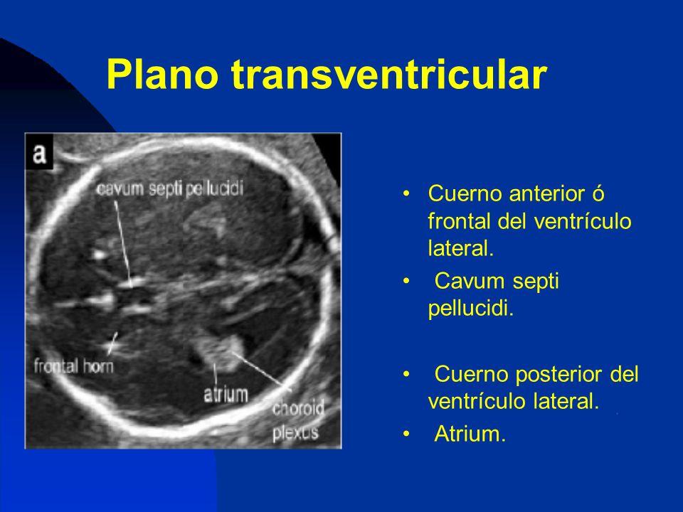 Plano transventricular