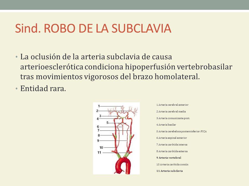 Sind. ROBO DE LA SUBCLAVIA