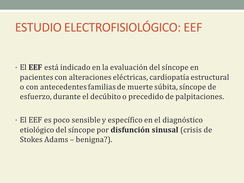ESTUDIO ELECTROFISIOLÓGICO: EEF