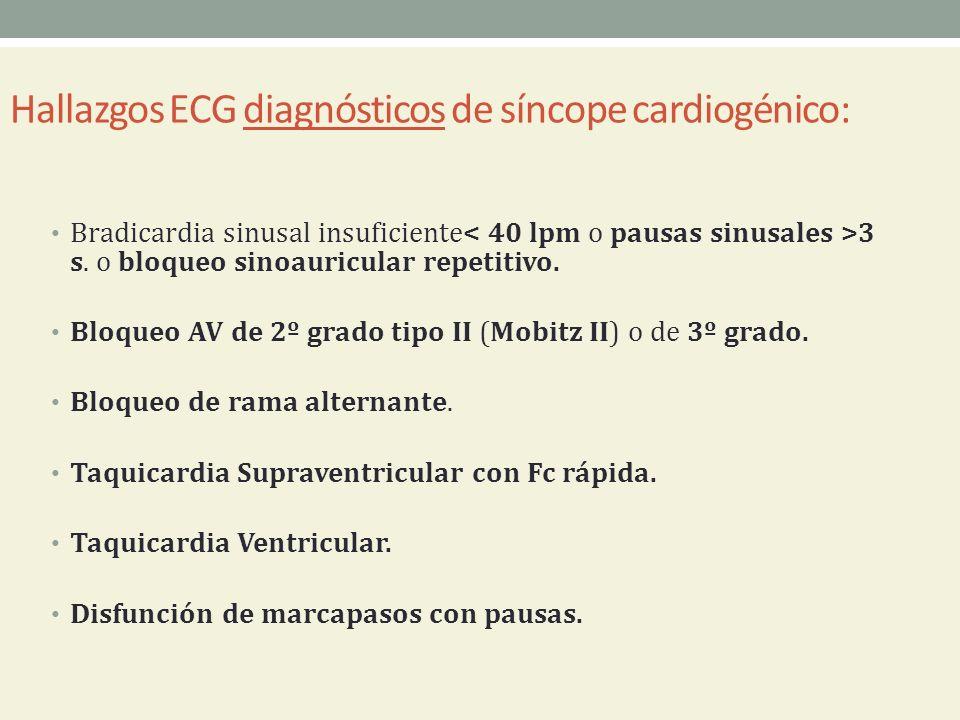Hallazgos ECG diagnósticos de síncope cardiogénico: