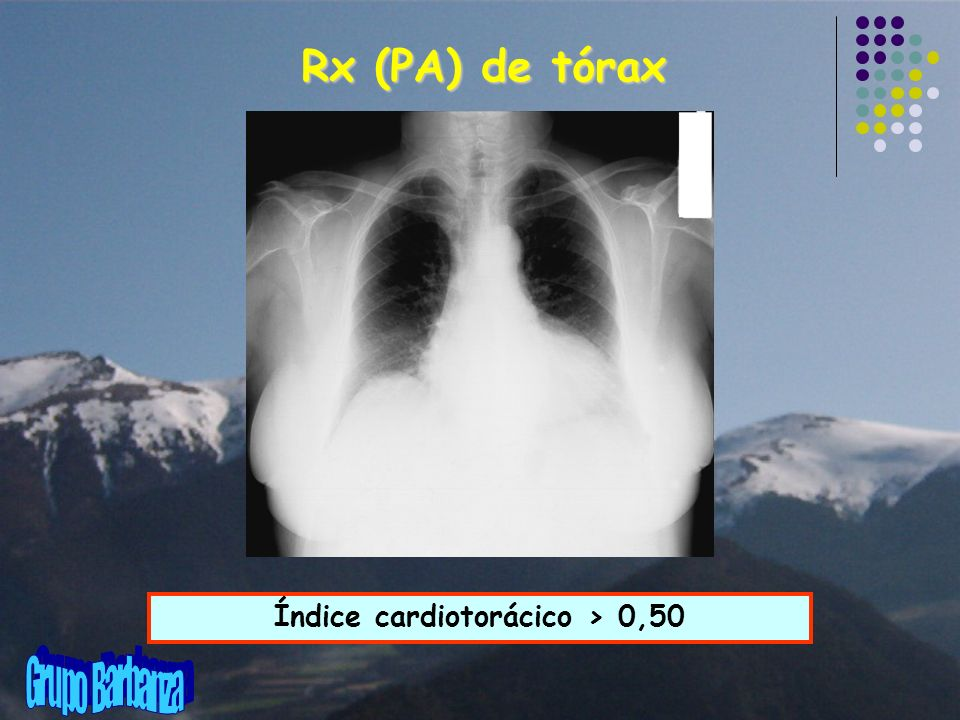 Índice cardiotorácico > 0,50