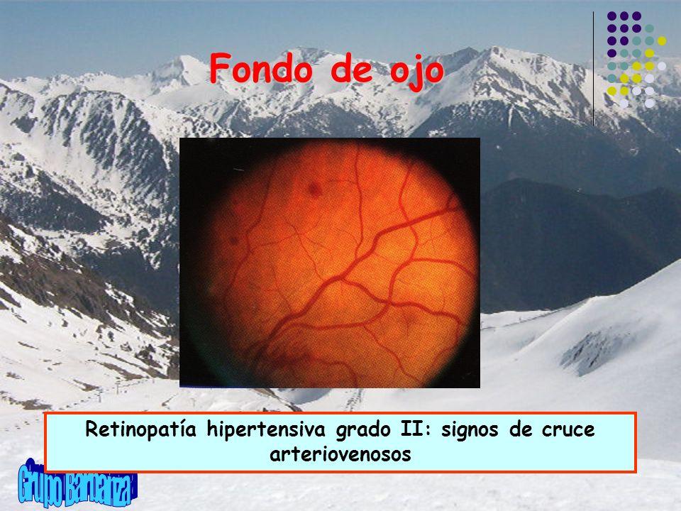 Retinopatía hipertensiva grado II: signos de cruce arteriovenosos