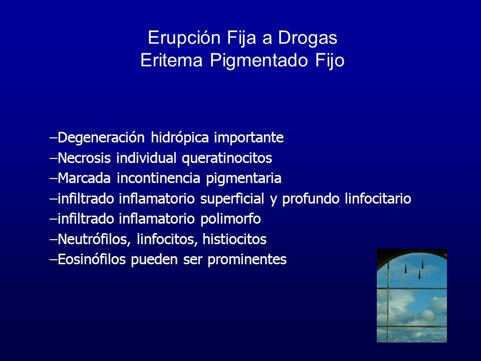 Erupción Fija a Drogas Eritema Pigmentado Fijo