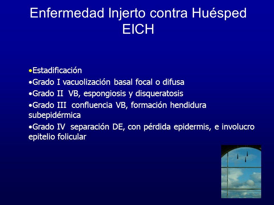 Enfermedad Injerto contra Huésped EICH