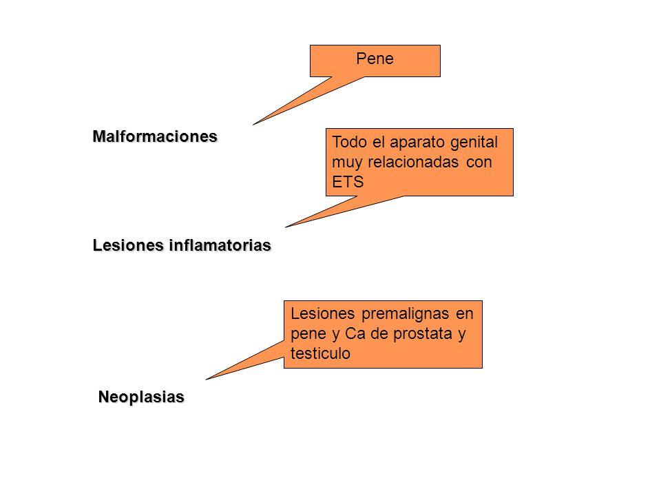 Pene Malformaciones. Todo el aparato genital muy relacionadas con ETS. Lesiones inflamatorias.