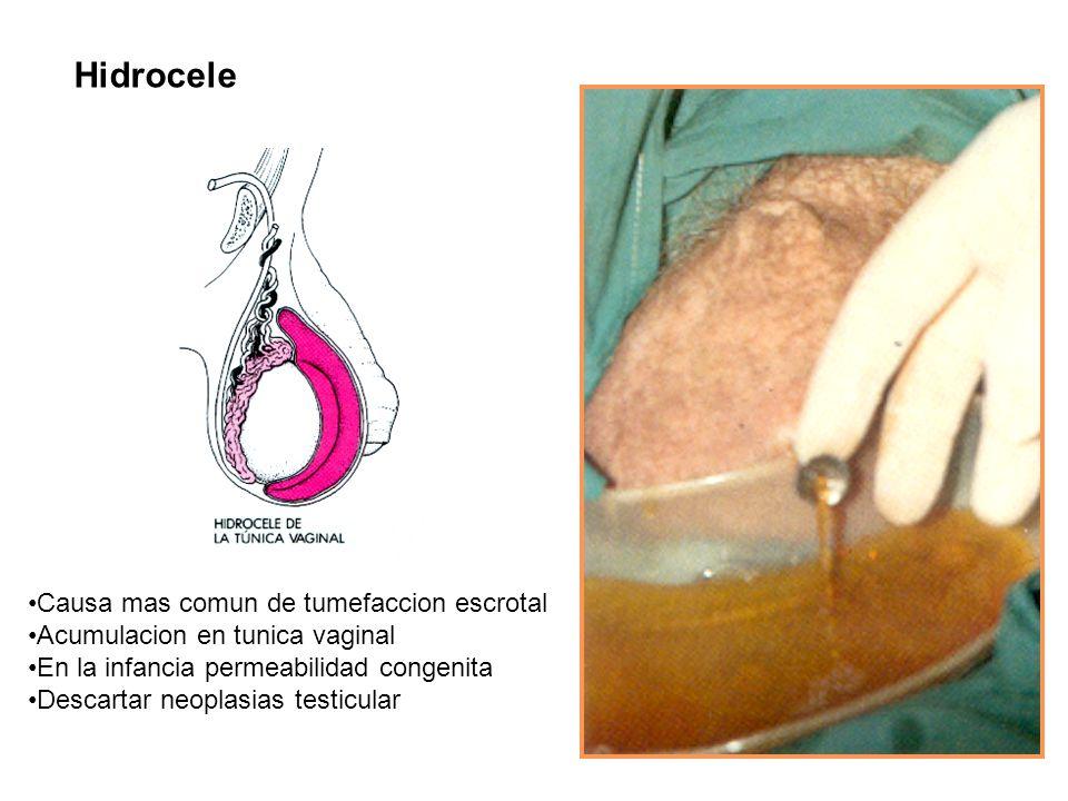 Hidrocele Causa mas comun de tumefaccion escrotal