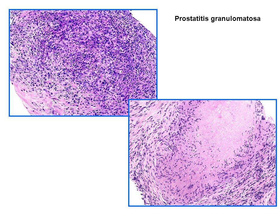 Prostatitis granulomatosa
