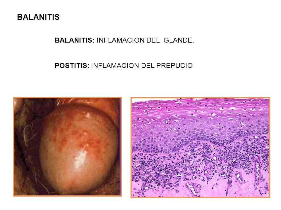 BALANITIS BALANITIS: INFLAMACION DEL GLANDE.