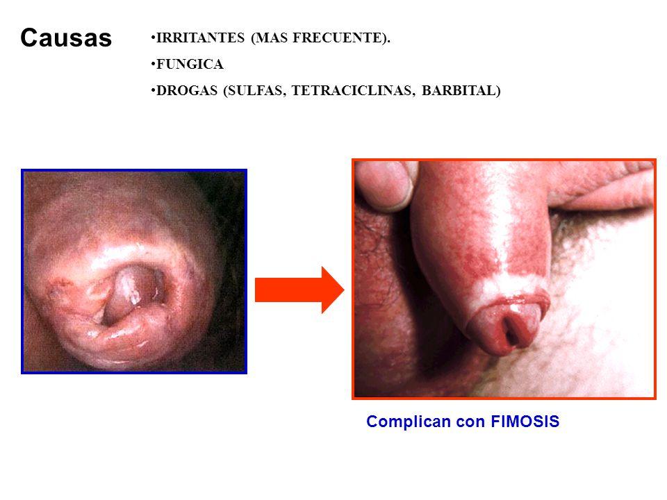Causas Complican con FIMOSIS IRRITANTES (MAS FRECUENTE). FUNGICA