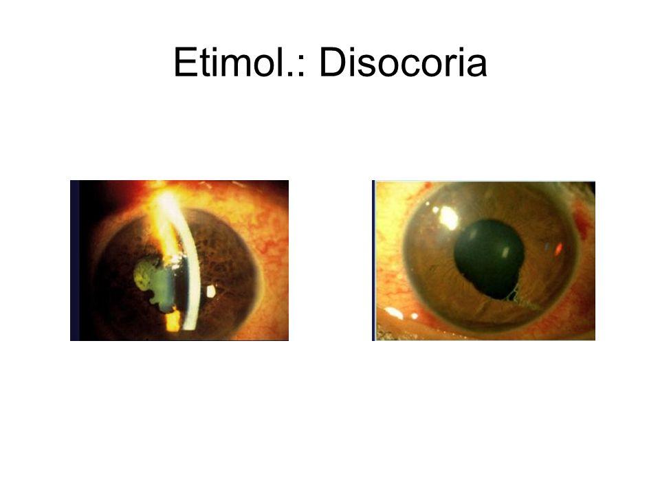 Etimol.: Disocoria