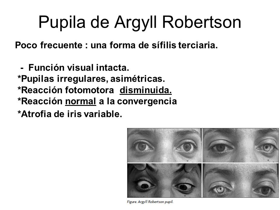 Pupila de Argyll Robertson
