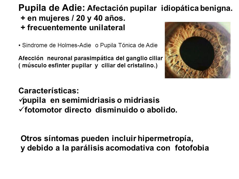 Pupila de Adie: Afectación pupilar idiopática benigna.