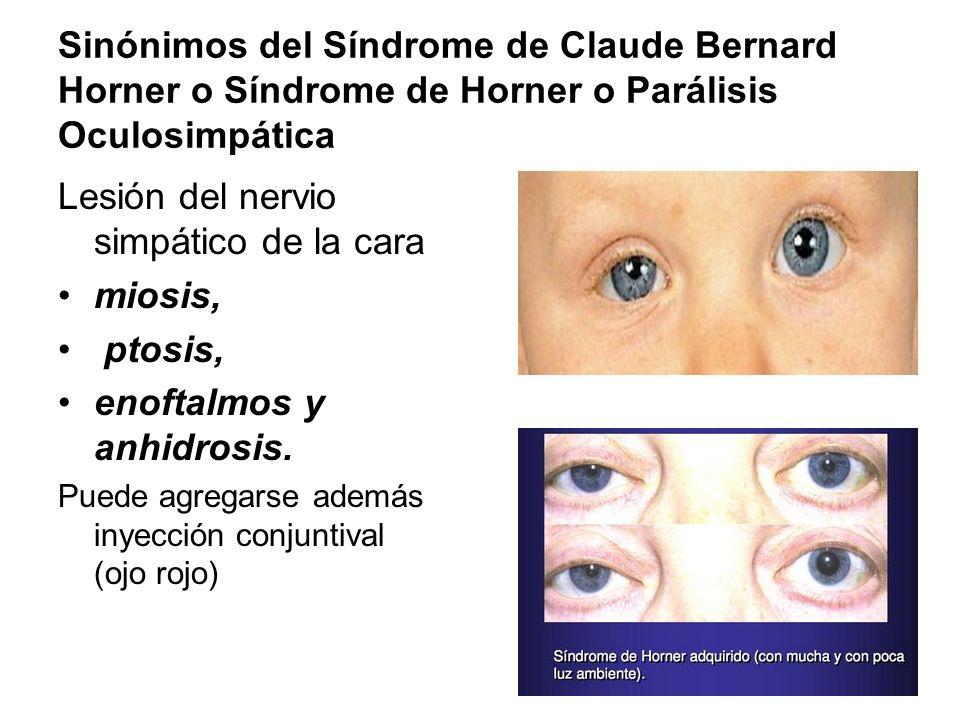 Lesión del nervio simpático de la cara miosis, ptosis,