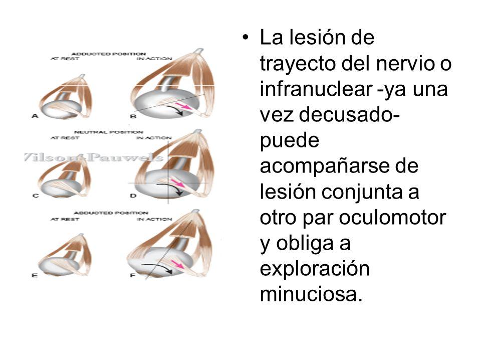 La lesión de trayecto del nervio o infranuclear -ya una vez decusado- puede acompañarse de lesión conjunta a otro par oculomotor y obliga a exploración minuciosa.