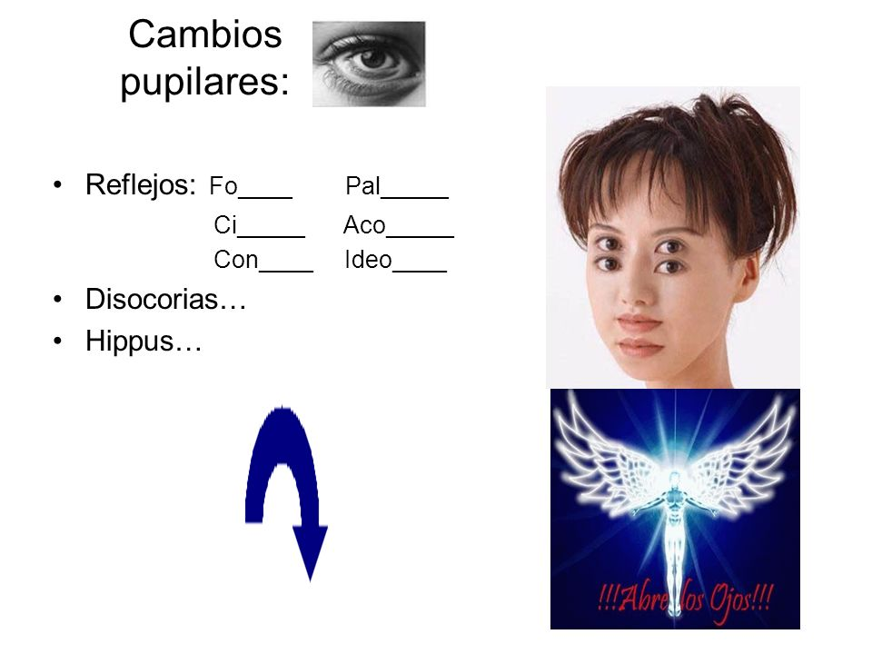 Cambios pupilares: Reflejos: Fo____ Pal_____ Disocorias… Hippus…