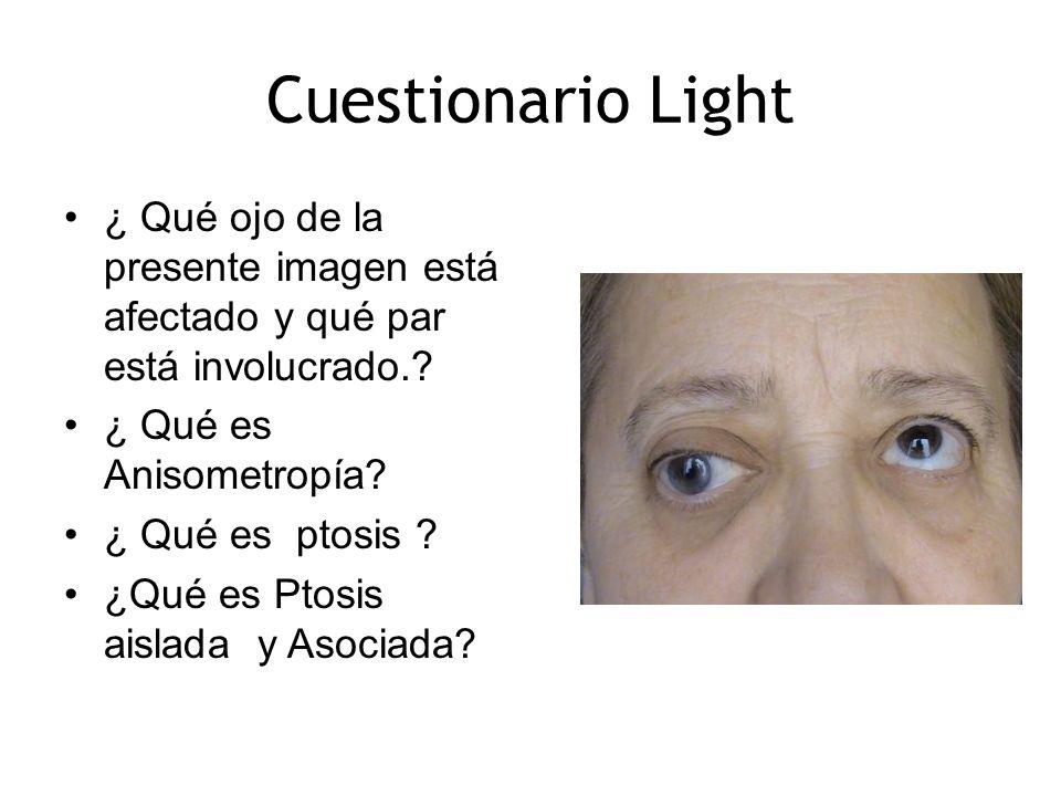 Cuestionario Light ¿ Qué ojo de la presente imagen está afectado y qué par está involucrado. ¿ Qué es Anisometropía