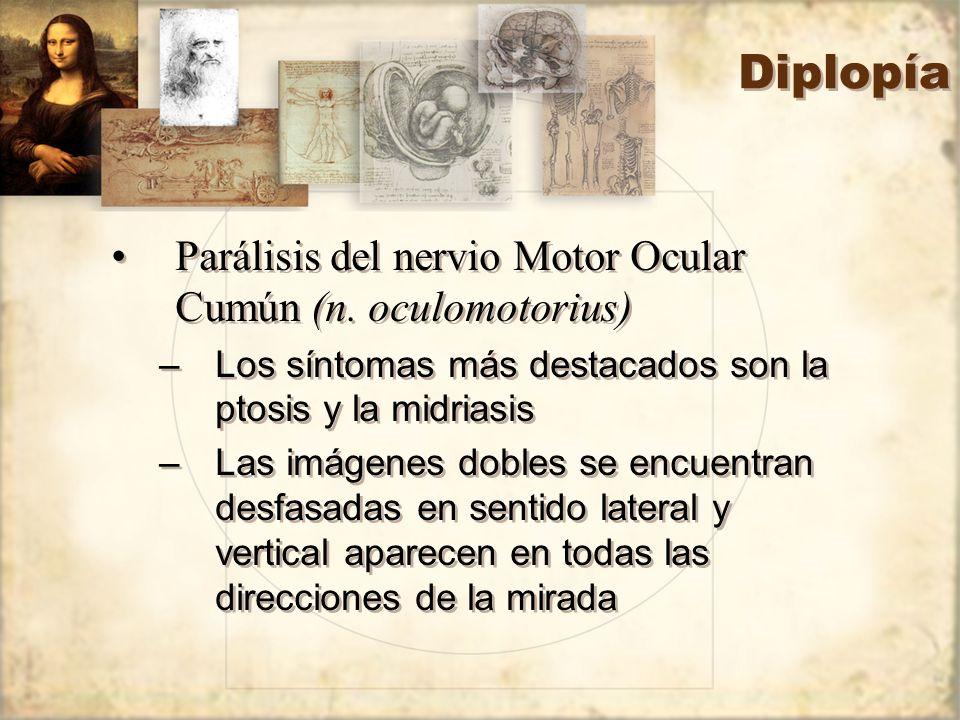 Diplopía Parálisis del nervio Motor Ocular Cumún (n. oculomotorius)