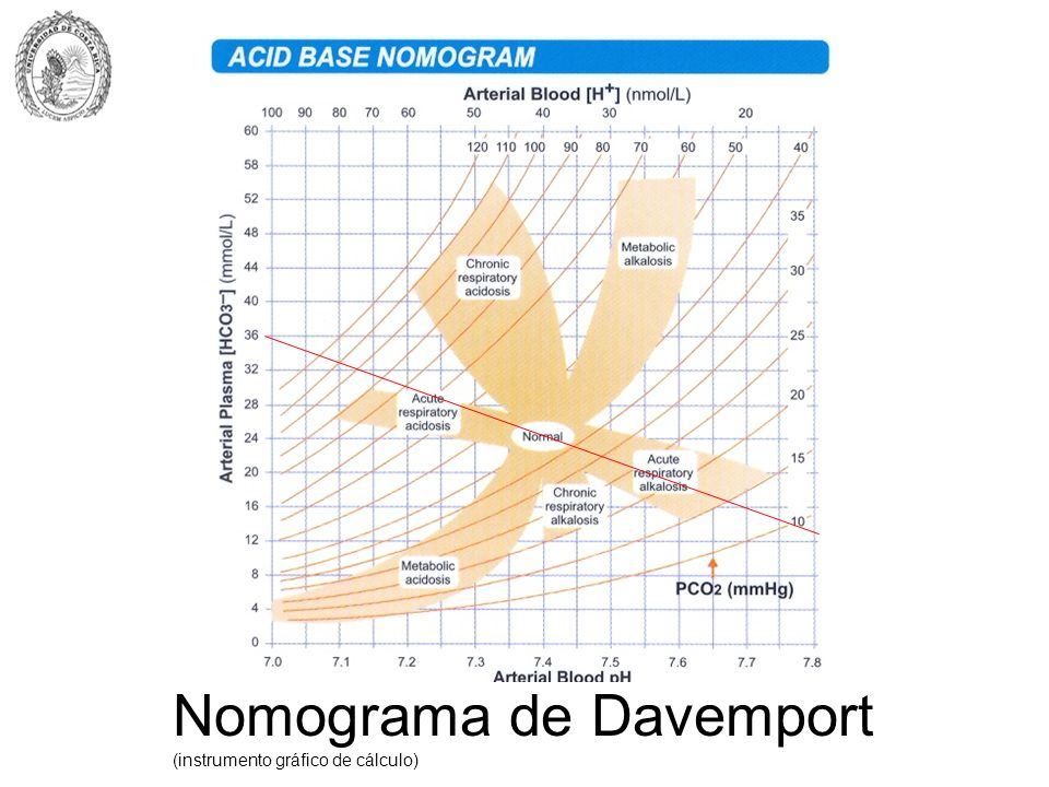 Nomograma de Davemport