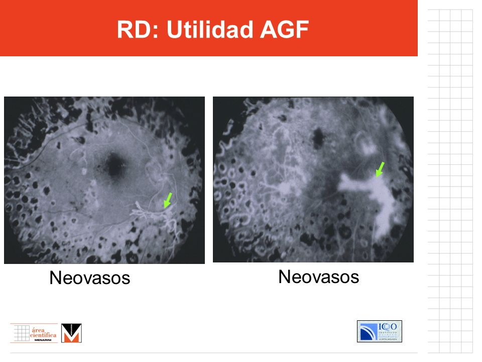 RD: Utilidad AGF Neovasos Neovasos