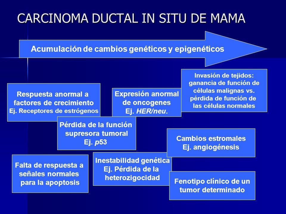 CARCINOMA DUCTAL IN SITU DE MAMA