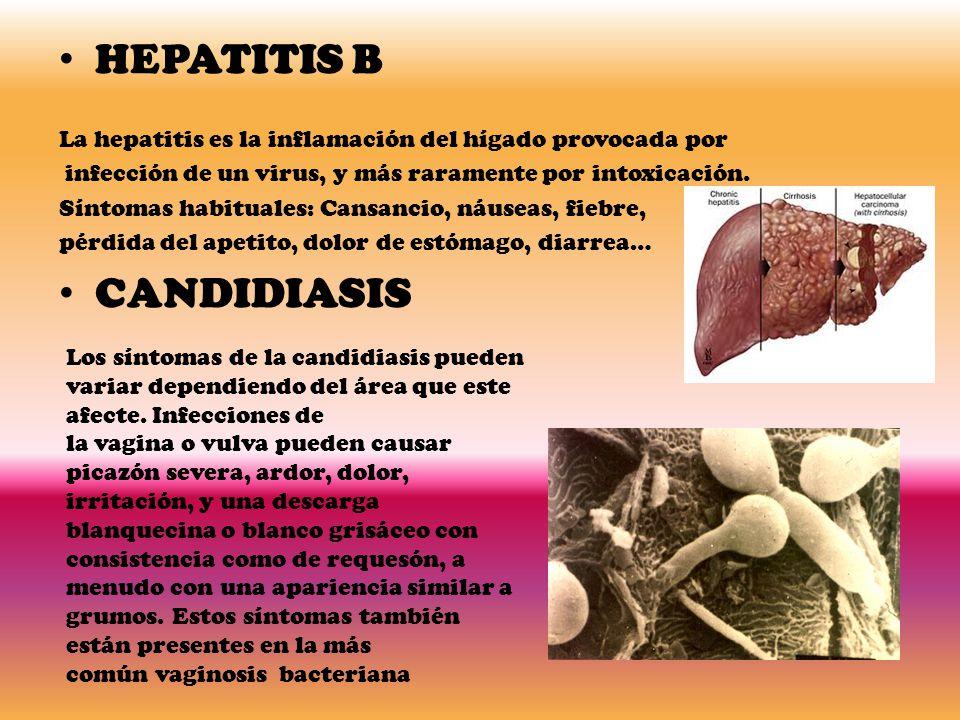 HEPATITIS B CANDIDIASIS