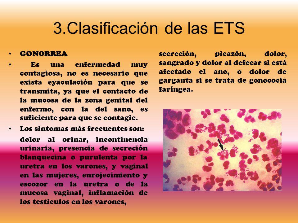 3.Clasificación de las ETS
