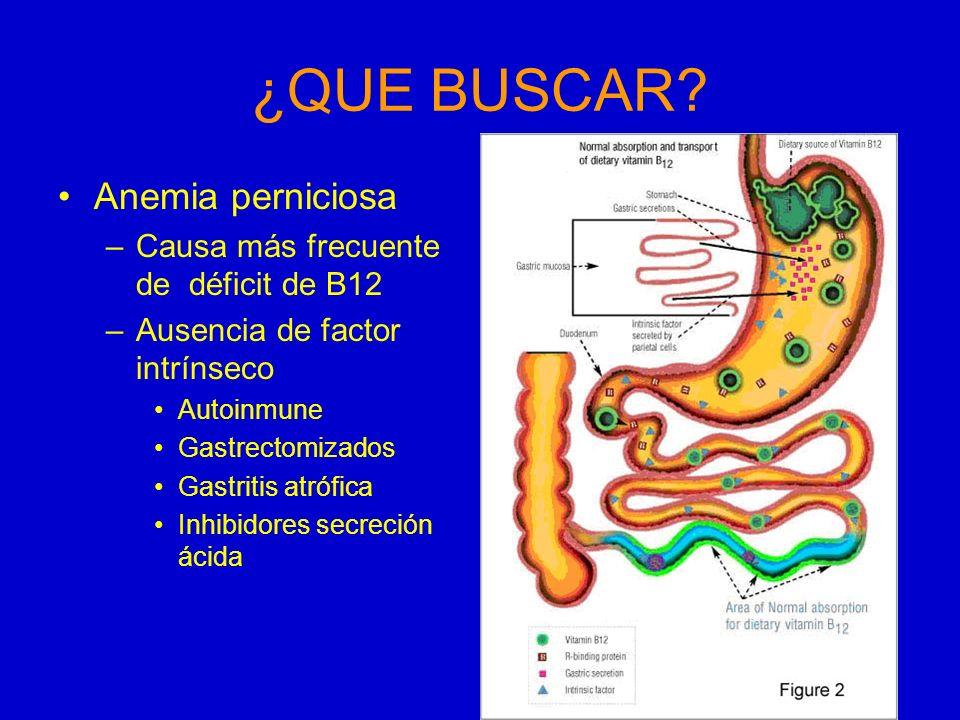 ¿QUE BUSCAR Anemia perniciosa Causa más frecuente de déficit de B12