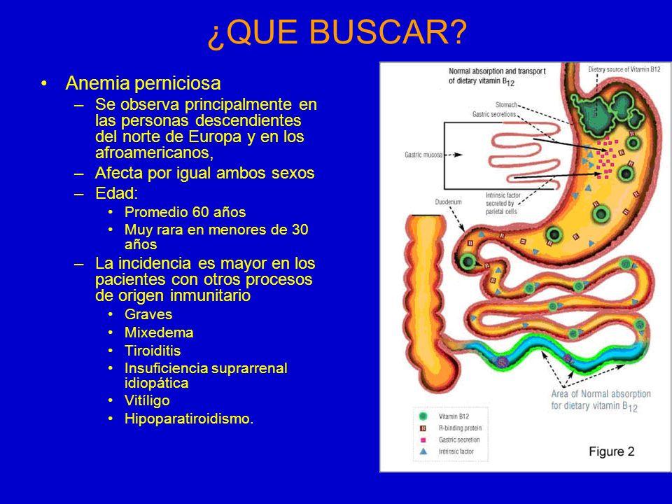 ¿QUE BUSCAR Anemia perniciosa