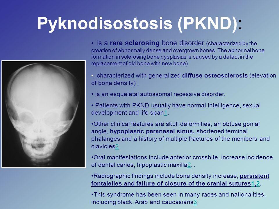Pyknodisostosis (PKND):