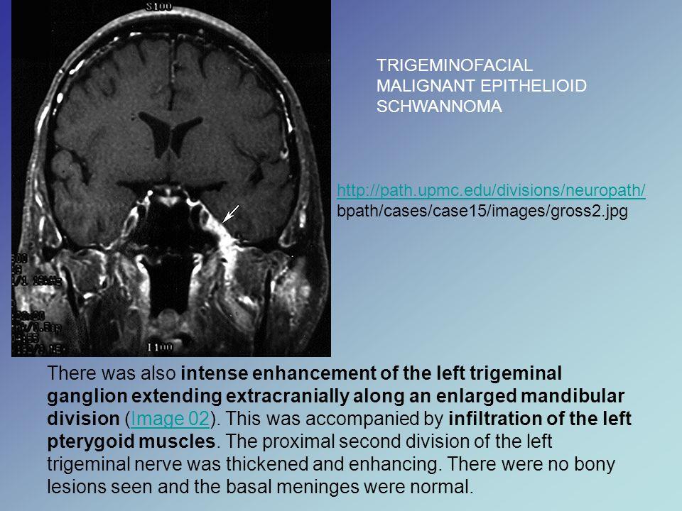 TRIGEMINOFACIAL MALIGNANT EPITHELIOID SCHWANNOMA