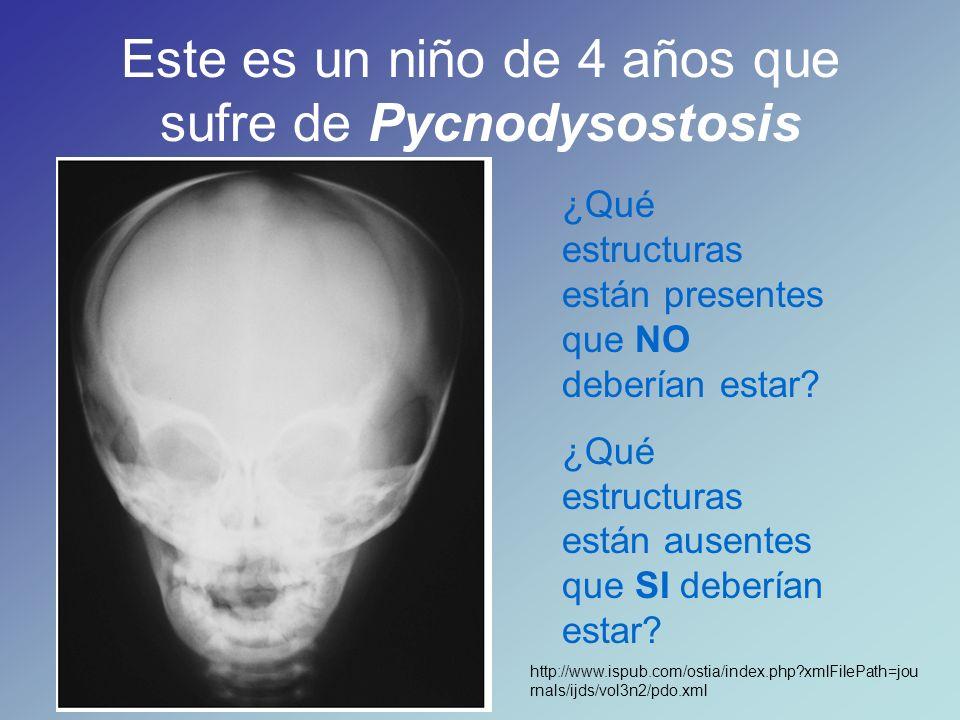 Este es un niño de 4 años que sufre de Pycnodysostosis