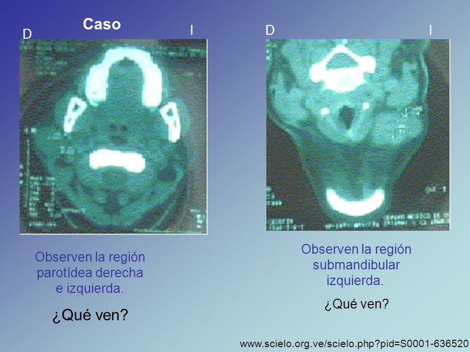 Caso ¿Qué ven I D I D Observen la región submandibular izquierda.