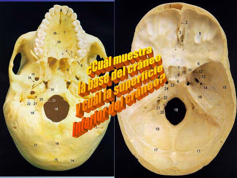 ¿Cuál muestra la base del cráneo y cuál la superficie inferior del cráneo