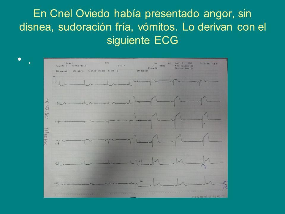 En Cnel Oviedo había presentado angor, sin disnea, sudoración fría, vómitos. Lo derivan con el siguiente ECG