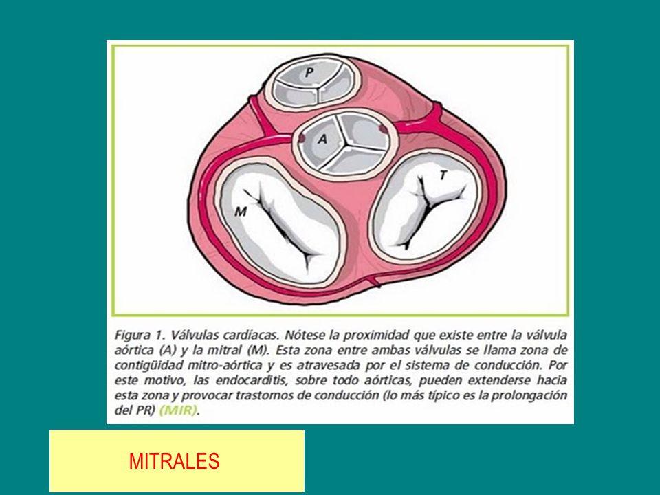 MITRALES