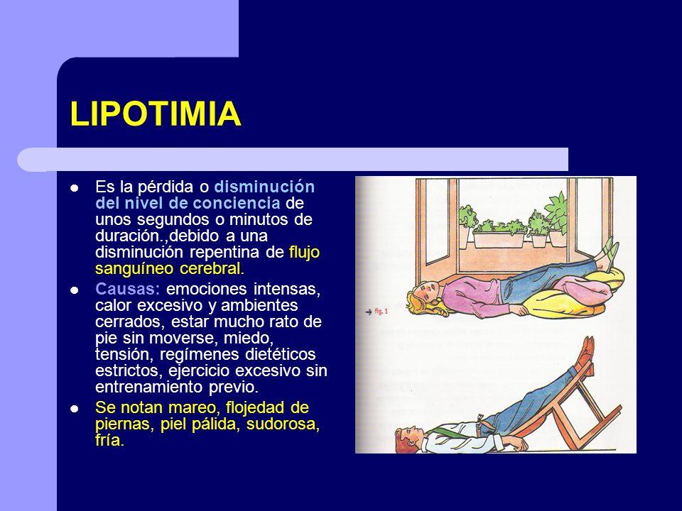 LIPOTIMIA