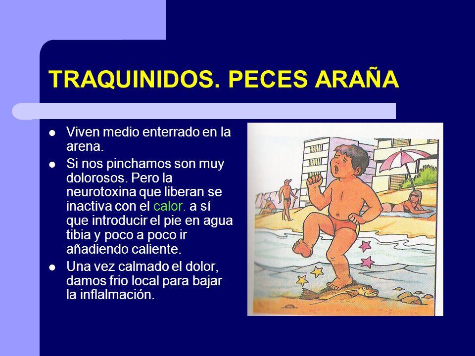 TRAQUINIDOS. PECES ARAÑA