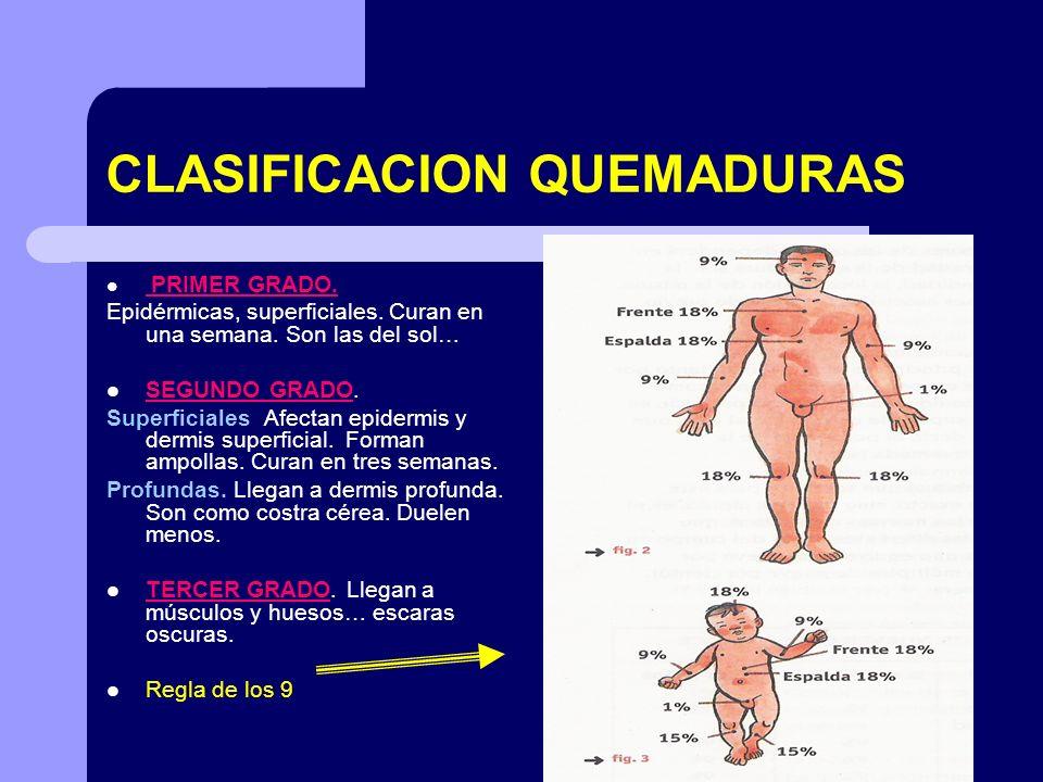 CLASIFICACION QUEMADURAS