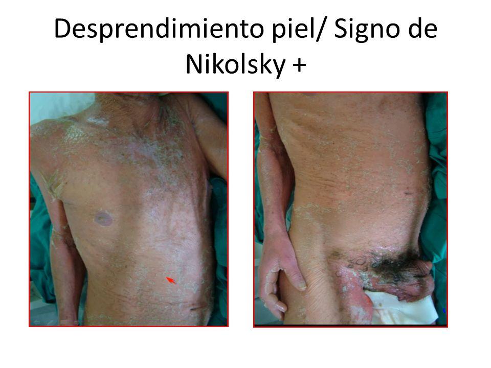 Desprendimiento piel/ Signo de Nikolsky +