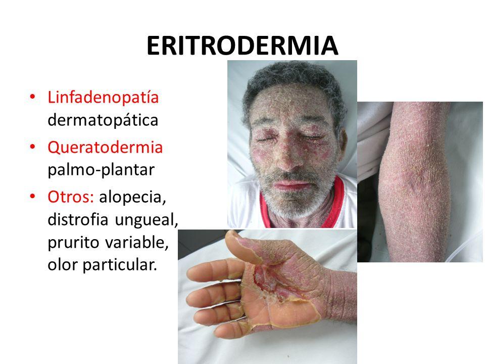 ERITRODERMIA Linfadenopatía dermatopática Queratodermia palmo-plantar