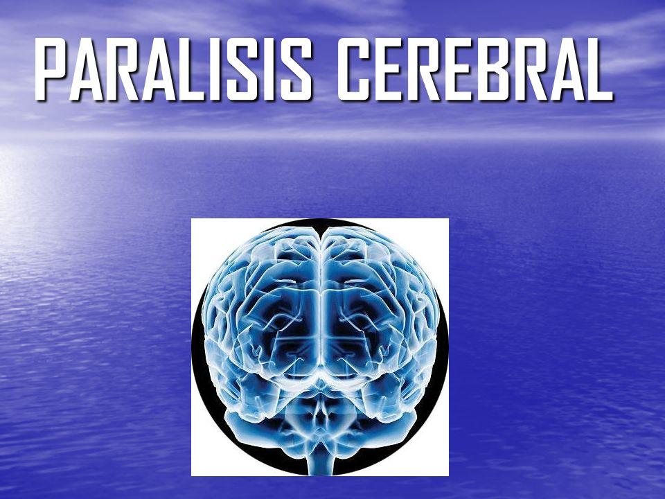 PARALISIS CEREBRAL. - ppt video online descargar