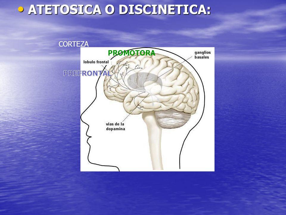 ATETOSICA O DISCINETICA: