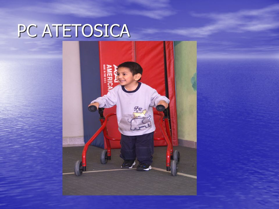 PC ATETOSICA