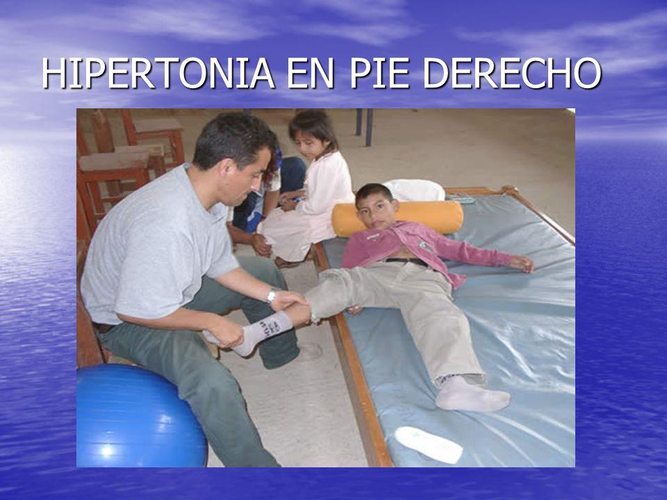 HIPERTONIA EN PIE DERECHO