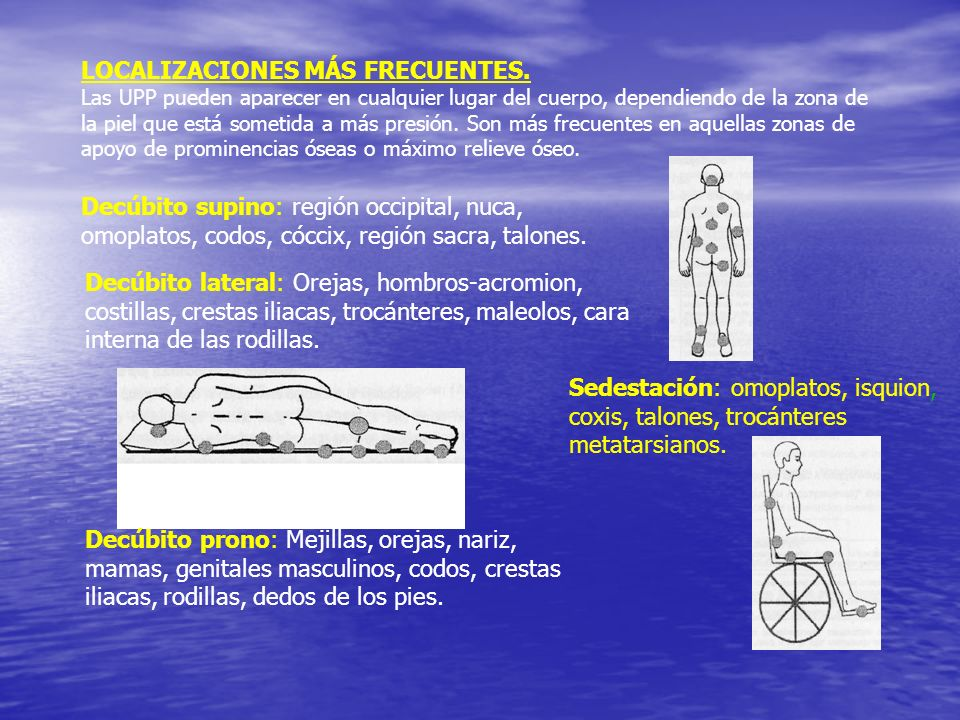 LOCALIZACIONES MÁS FRECUENTES.